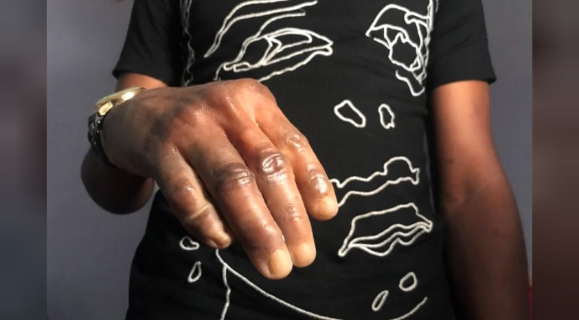 mans hand wearing a dark skin prosthetic